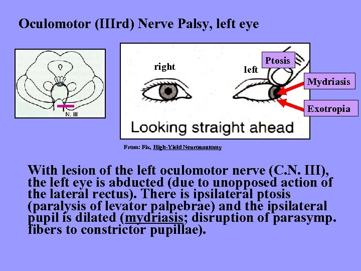 Oculomotor (IIIrd) Nerve Palsy, left eye right left Ptosis Mydriasis Exotropia From: Fix, High-Yield
