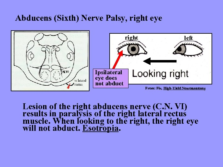 Abducens (Sixth) Nerve Palsy, right eye right Ipsilateral eye does not abduct left From: