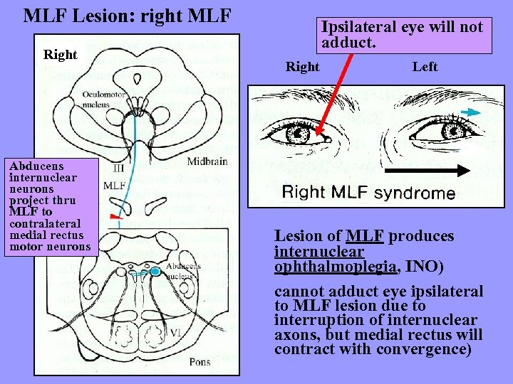 MLF Lesion: right MLF Right Abducens internuclear neurons project thru MLF to contralateral medial