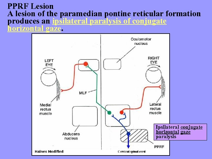 PPRF Lesion A lesion of the paramedian pontine reticular formation produces an ipsilateral paralysis