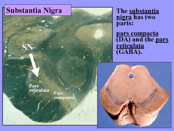 Substantia Nigra pars compacta (DA) and the pars reticulata (GABA). SN Pars reticulata The