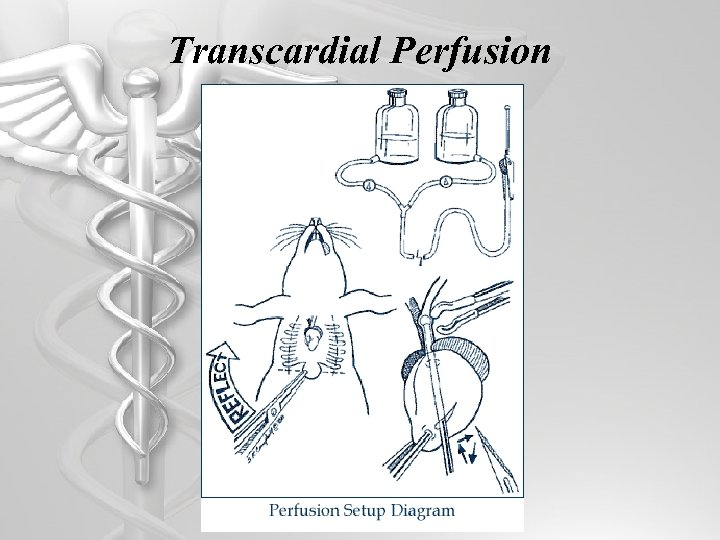 Transcardial Perfusion