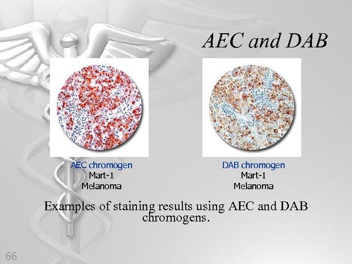 AEC and DAB AEC chromogen Mart-1 Melanoma DAB chromogen Mart-1 Melanoma Examples of staining