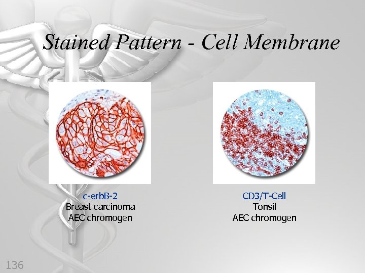 Stained Pattern - Cell Membrane c-erb. B-2 Breast carcinoma AEC chromogen 136 CD 3/T-Cell