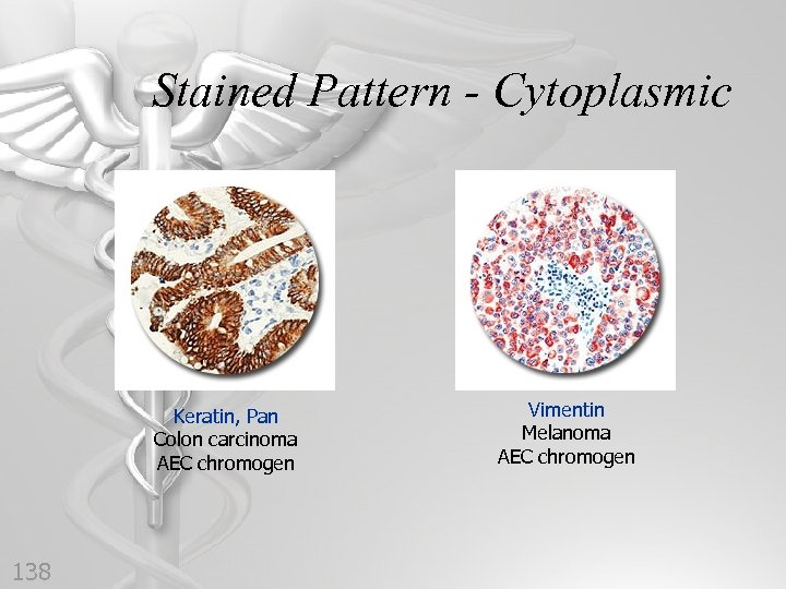 Stained Pattern - Cytoplasmic Keratin, Pan Colon carcinoma AEC chromogen 138 Vimentin Melanoma AEC