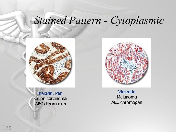 Stained Pattern - Cytoplasmic Keratin, Pan Colon carcinoma AEC chromogen 138 Vimentin Melanoma AEC