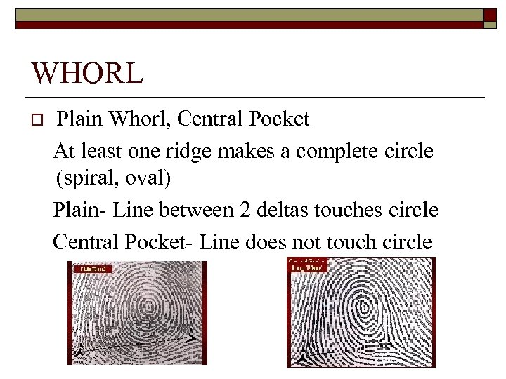 WHORL o Plain Whorl, Central Pocket At least one ridge makes a complete circle