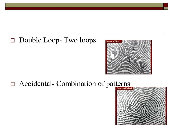 o Double Loop- Two loops o Accidental- Combination of patterns