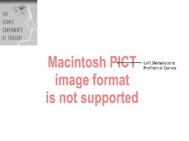Left Dorsolateral Prefrontal Cortex