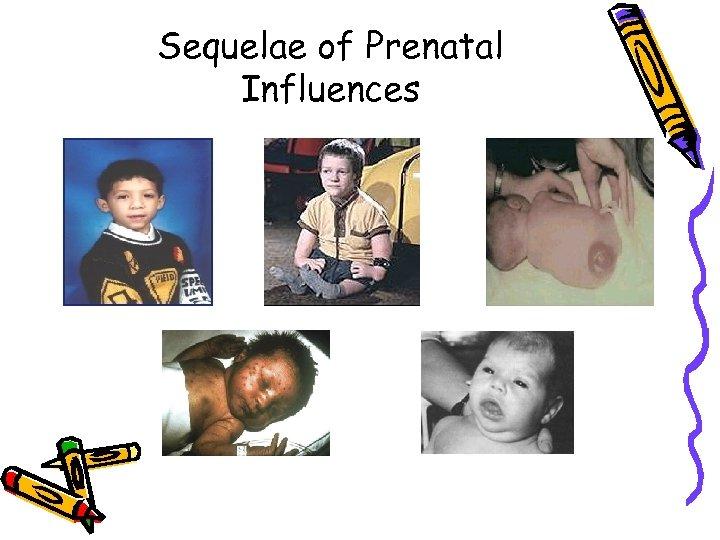 Sequelae of Prenatal Influences
