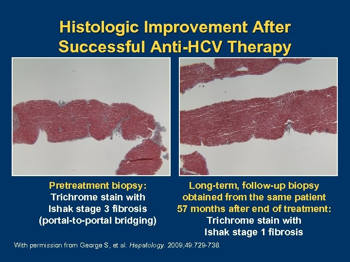 Histologic Improvement After Successful Anti-HCV Therapy Pretreatment biopsy: Trichrome stain with Ishak stage 3