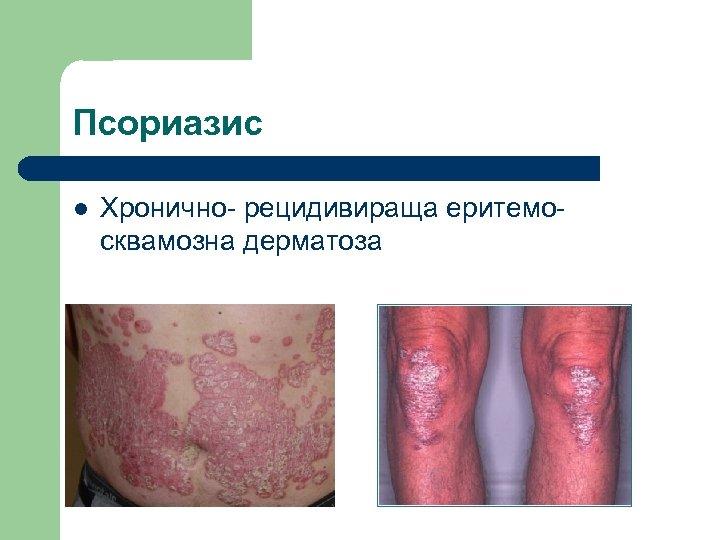 Псориазис l Хронично- рецидивираща еритемо- сквамозна дерматоза
