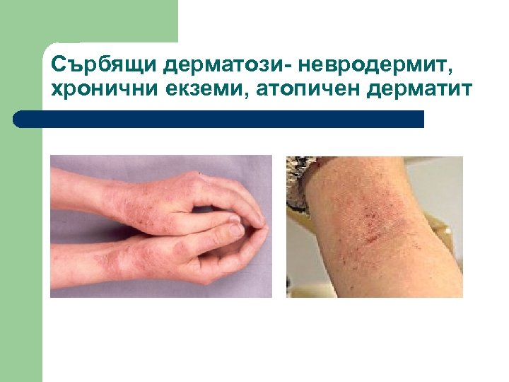 Сърбящи дерматози- невродермит, хронични екземи, атопичен дерматит
