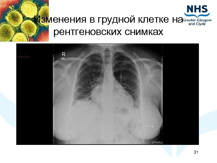 Изменения в грудной клетке на рентгеновских снимках 31