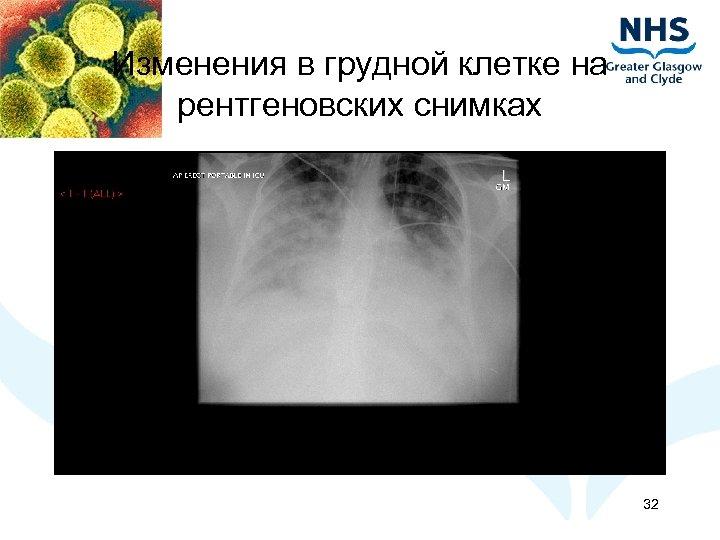 Изменения в грудной клетке на рентгеновских снимках 32