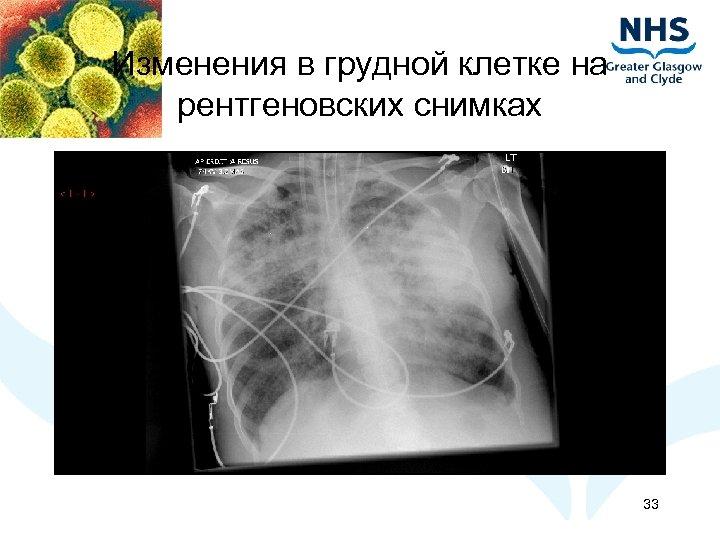 Изменения в грудной клетке на рентгеновских снимках 33