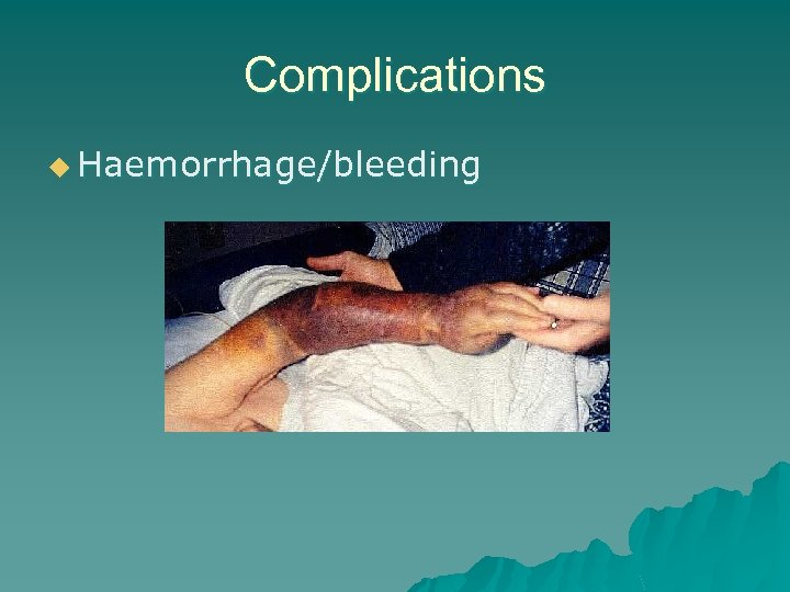 Complications u Haemorrhage/bleeding