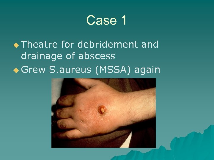 Case 1 u Theatre for debridement and drainage of abscess u Grew S. aureus