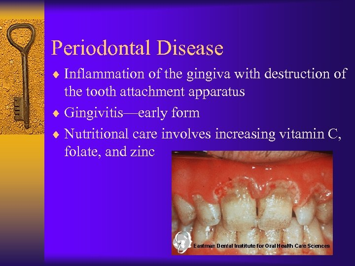 Periodontal Disease ¨ Inflammation of the gingiva with destruction of the tooth attachment apparatus