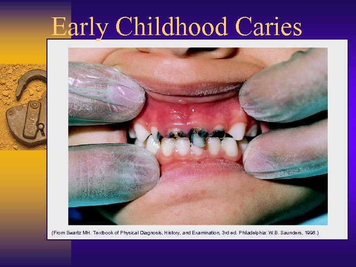 Early Childhood Caries (From Swartz MH. Textbook of Physical Diagnosis, History, and Examination, 3