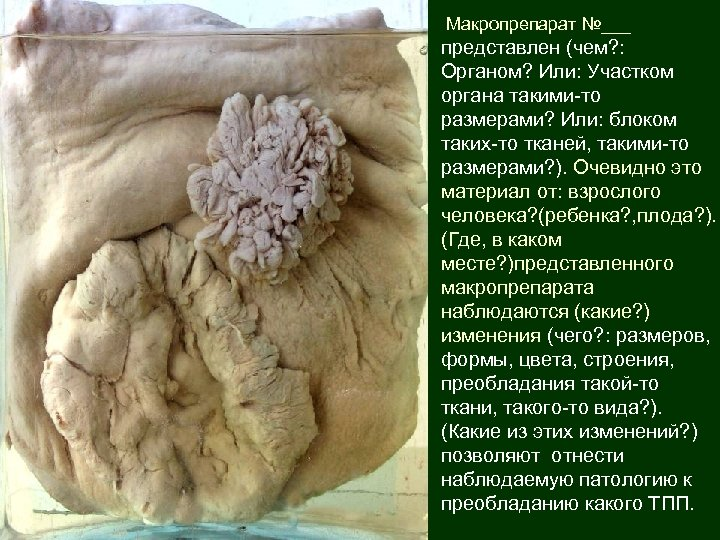 Макропрепарат №___ представлен (чем? : Органом? Или: Участком органа такими-то размерами? Или: блоком таких-то