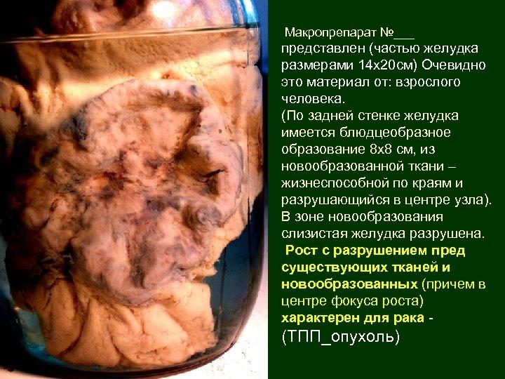 Макропрепарат №___ представлен (частью желудка размерами 14 х20 см) Очевидно это материал от: взрослого