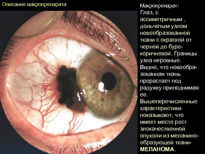 Описание макропрепарата Макропрепарат: Глаз, с ассиметричным , дольчатым узлом новообразованной ткани с окраской от