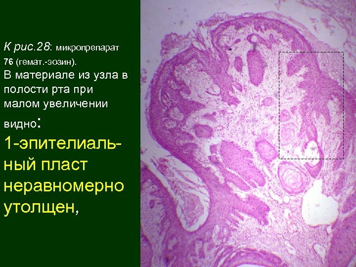 К рис. 28: микропрепарат 76 (гемат. -эозин). В материале из узла в полости рта