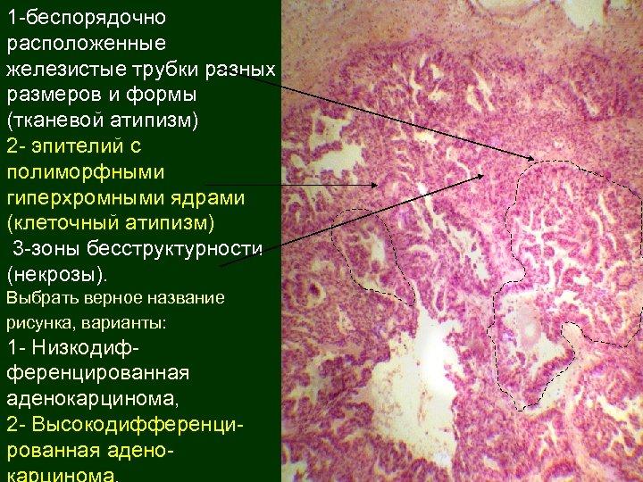1 -беспорядочно расположенные железистые трубки разных размеров и формы (тканевой атипизм) 2 - эпителий