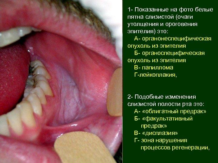 1 - Показанные на фото белые пятна слизистой (очаги утолщения и ороговения эпителия) это: