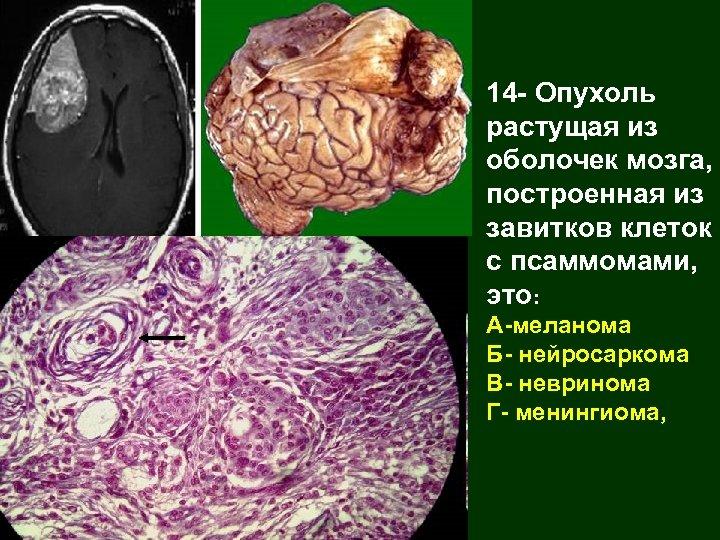 14 - Опухоль растущая из оболочек мозга, построенная из завитков клеток с псаммомами, это: