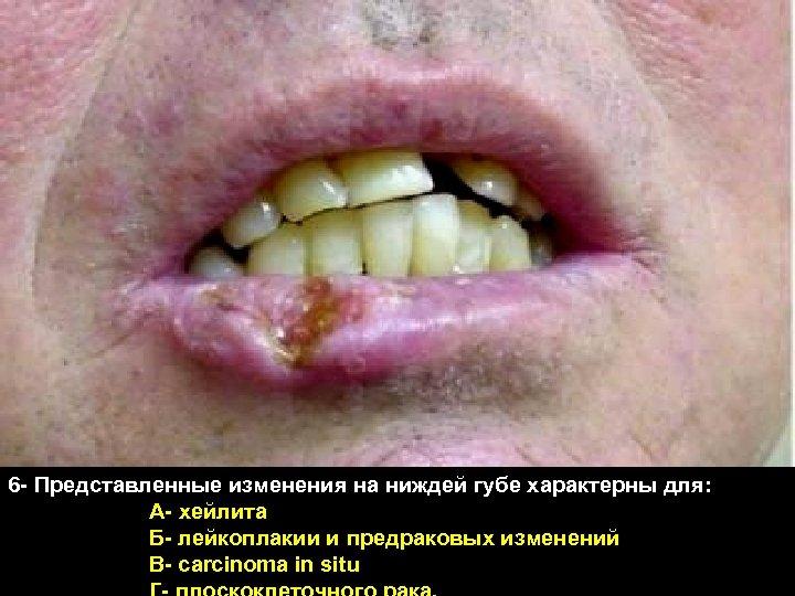 6 - Представленные изменения на ниждей губе характерны для: А- хейлита Б- лейкоплакии и