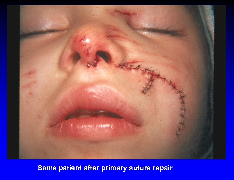 Same patient after primary suture repair