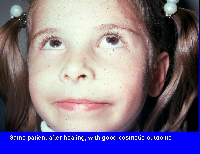 Same patient after healing, with good cosmetic outcome