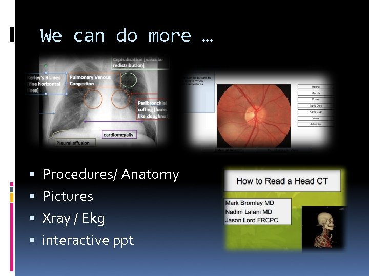 We can do more … Procedures/ Anatomy Pictures Xray / Ekg interactive ppt
