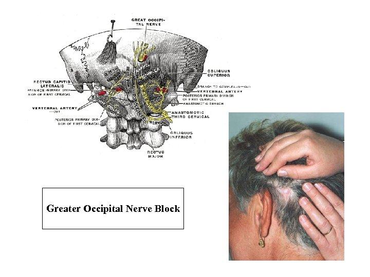 Greater Occipital Nerve Block