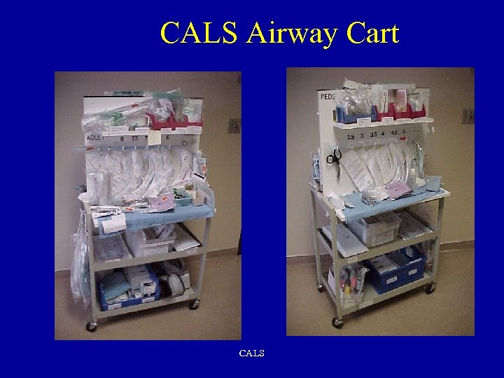 CALS Airway Cart CALS