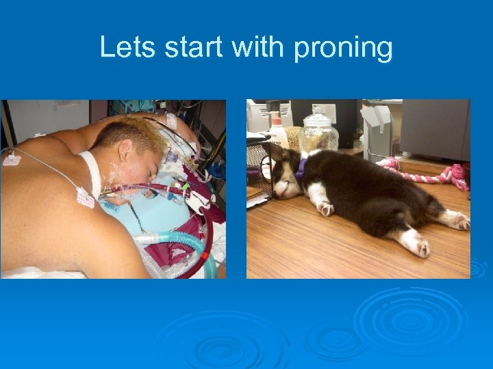 Lets start with proning
