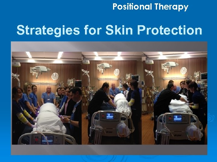 Positional Therapy Strategies for Skin Protection