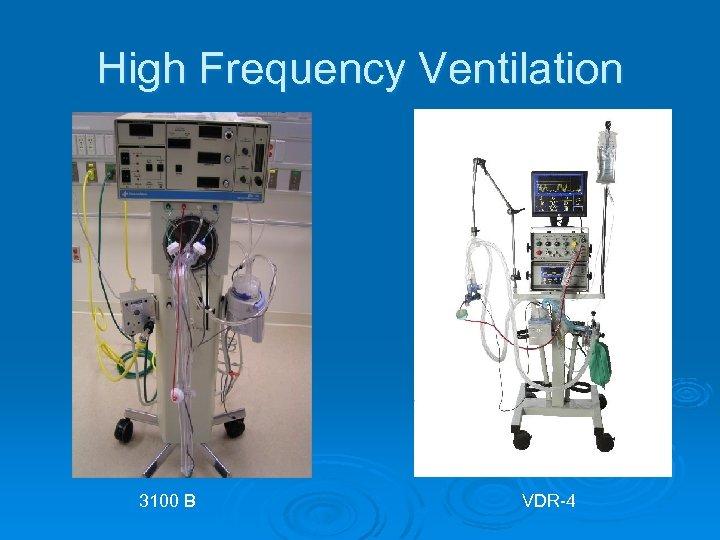 High Frequency Ventilation 3100 B VDR-4