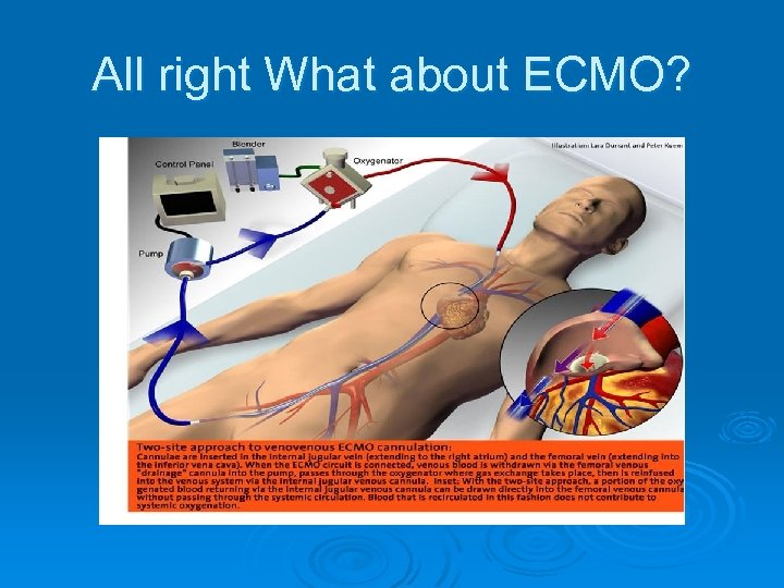 All right What about ECMO?
