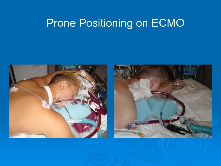 Prone Positioning on ECMO