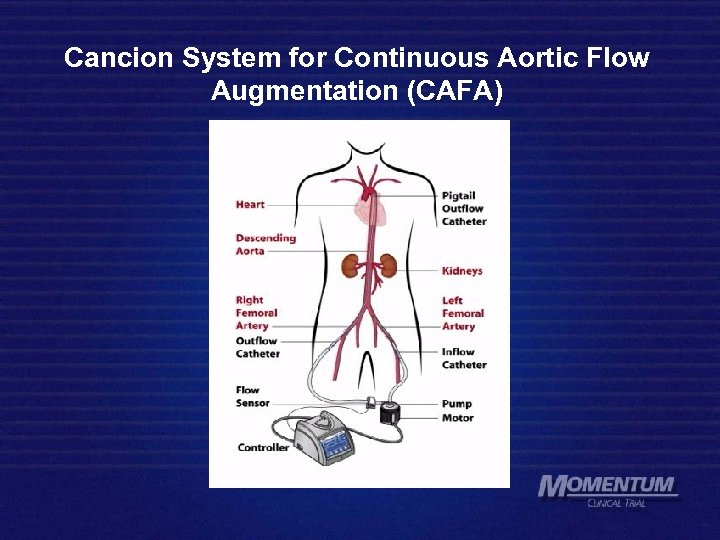 Cancion System for Continuous Aortic Flow Augmentation (CAFA)