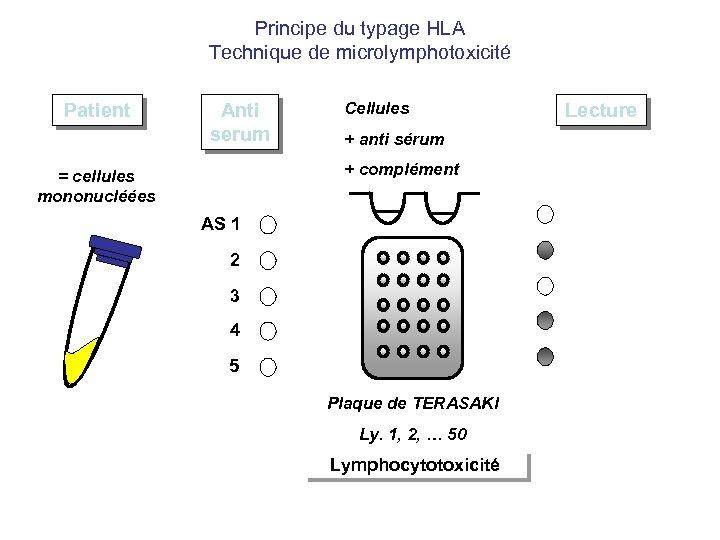 Principe du typage HLA Technique de microlymphotoxicité Patient Anti serum Cellules + anti sérum