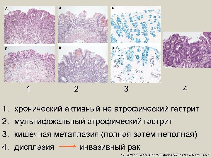 1 2 3 4 1. хронический активный не атрофический гастрит 2. мультифокальный атрофический гастрит
