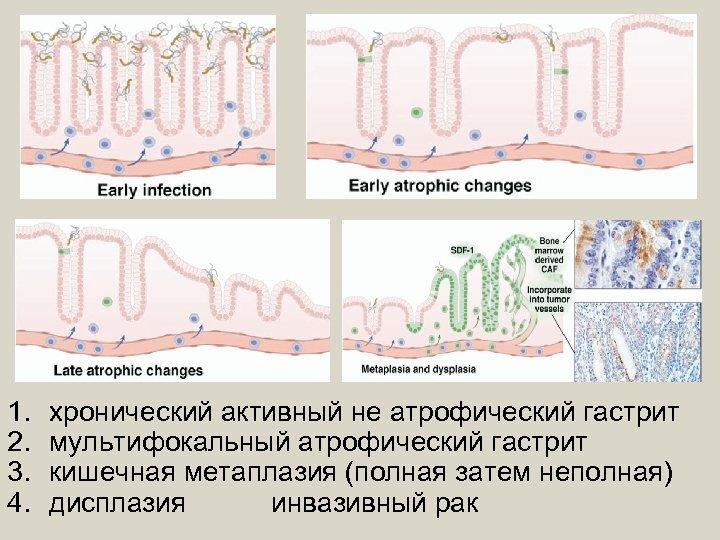 1. 2. 3. 4. хронический активный не атрофический гастрит мультифокальный атрофический гастрит кишечная метаплазия