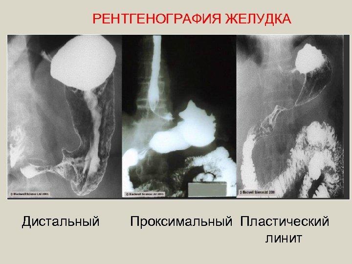 РЕНТГЕНОГРАФИЯ ЖЕЛУДКА Дистальный Проксимальный Пластический линит