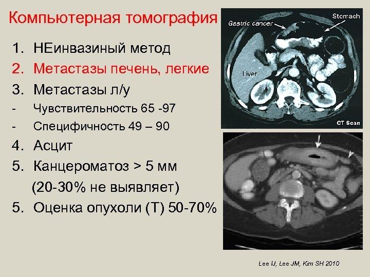 Компьютерная томография 1. НЕинвазиный метод 2. Метастазы печень, легкие 3. Метастазы л/у - Чувствительность