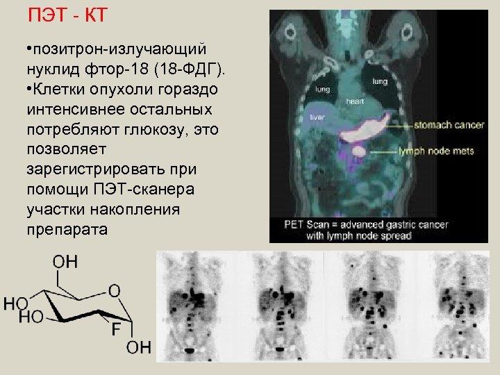 ПЭТ - КТ • позитрон-излучающий нуклид фтор-18 (18 -ФДГ). • Клетки опухоли гораздо интенсивнее