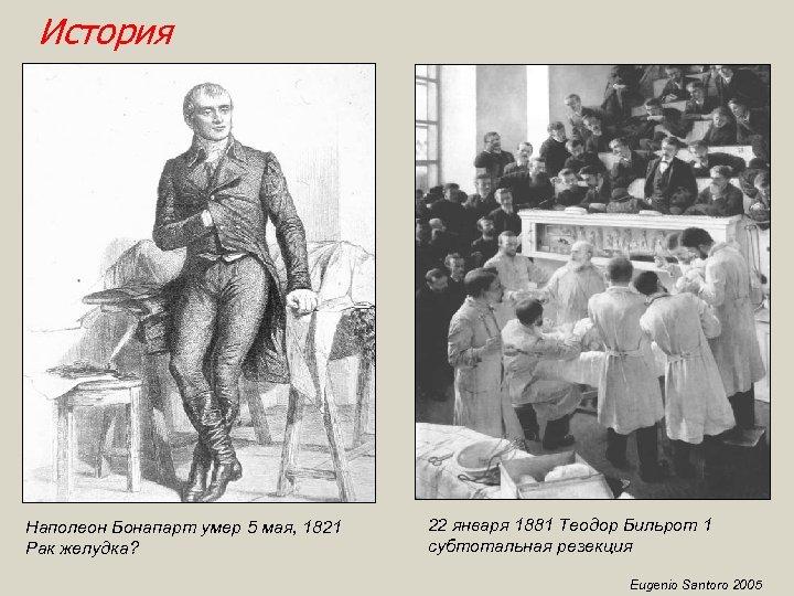 История Наполеон Бонапарт умер 5 мая, 1821 Рак желудка? 22 января 1881 Теодор Бильрот